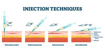 Free Injection Techniques Vector Illustration. Medical Procedure Examples Scheme Royalty Free Stock Photography - 176905107