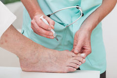Injection to bunion stock images