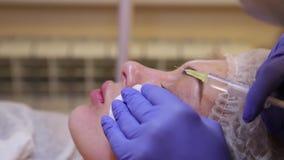 Injections de Mesotherapy dans le visage banque de vidéos
