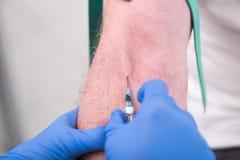 Injektion av en kateter i armen arkivfoton