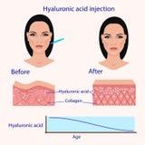 Injektion för Hyaluronic syra, för och affekt, vektorillustration, diagram Arkivbilder