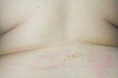 Injektioner för ryggrads- anestesi för organskada Royaltyfri Fotografi