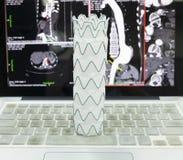 Injerto del stent de Endovascular foto de archivo