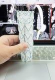 Injerto del stent de Endovascular fotos de archivo