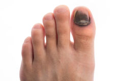 Injure Toenail Stock Photos