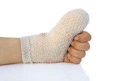 Injured arm Stock Photography