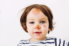 Injured baby Royalty Free Stock Photography
