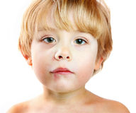 An Injured boy. A young boy with a swollen lip and cheek from a fall Royalty Free Stock Image