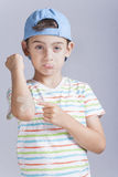 Injured boy with a a bruised elbow reacts in pain. Boy in pain with wounded arm and band aid in hand Stock Photos