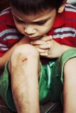 Injured boy with scraped knee. Injured boy looks at his scraped knee Royalty Free Stock Photos
