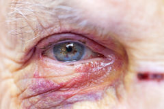 Injured elderly woman. Close up picture of an elderly woman`s injured eye & face - domestic violence Stock Photo
