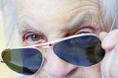 Injured elderly woman`s face Royalty Free Stock Images