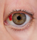 The injured eye Royalty Free Stock Images