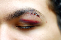 Injured eye. Close up of a young man with an injured eye royalty free stock image