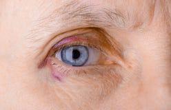 Injured eye due to capillary rupture Stock Photo