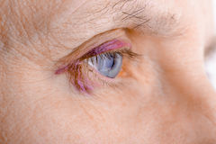 Injured eye due to capillary rupture Stock Images