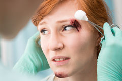 Injured female having professional care Royalty Free Stock Images