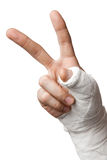 Injured Finger. With peace sign Stock Photography