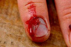 Injured finger. Stock Image