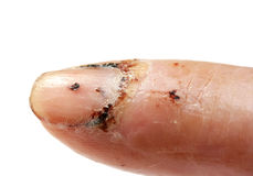 Injured Finger Royalty Free Stock Photography