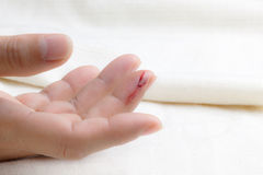 Injured finger Royalty Free Stock Images