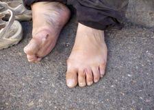 An injured foot Stock Photos
