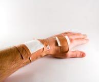 Injured hand. Isolated on white background stock photography