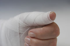 Injured hand Stock Image