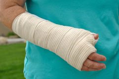 Injured Hand and Arm Royalty Free Stock Image
