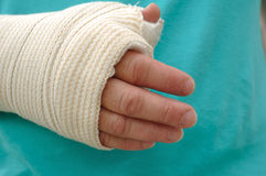 Injured Hand and Arm Royalty Free Stock Photo