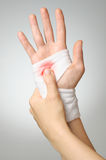 Injured hand with bloody bandage Stock Image