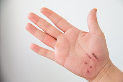 Injured hand Royalty Free Stock Photography