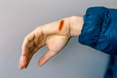 Injured hand with open cut, iodine-treated.  royalty free stock photo