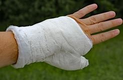 Injured hand with the white medical cast after the fracture Stock Images