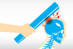 Injured at head from hit. Human injured at head and skull from hit vector illustration