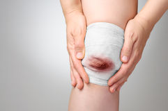 Injured knee with bloody bandage Royalty Free Stock Photography