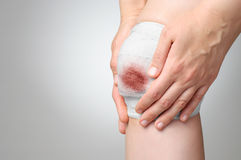 Injured knee with bloody bandage Royalty Free Stock Images
