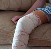 Injured knee. That has been bandaged up Stock Photos