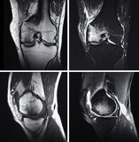 Injured knee, MRI Royalty Free Stock Photography