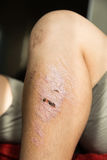 Injured knee with scar from abrasion healing. Injured knee with rough scar from abrasion healing Stock Photos