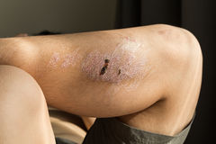 Injured knee with scar from abrasion healing. Injured knee with rough scar from abrasion healing Royalty Free Stock Photos