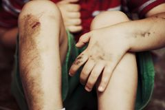 Injured knees Stock Images