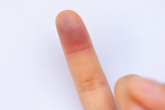 Injured middle finger Stock Photography