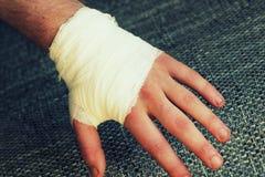 Injured painful hand with white gauze bandage.  Royalty Free Stock Image