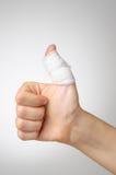 Injured thumb with bandage. Injured painful thumb with white bandage Royalty Free Stock Photography