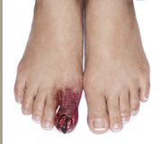 Injured toe special effects make up detail. Injured female toe special effects make up detail Stock Images