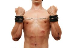 Injured victim in handcuffs Stock Photography