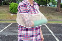 Injured woman with broken arm wearing an arm sling and green cas. T on arm Royalty Free Stock Photos