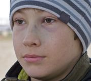 Injured young boy. A portrait of a young boy with an eye bruised Stock Images