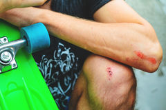 Injuries in extreme sports Stock Image